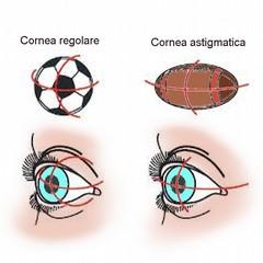 L'astigmatismo non corretto può provocare stanchezza e mal di testa
