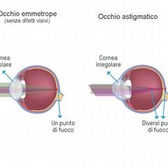 Cos'è l'astigmatismo?