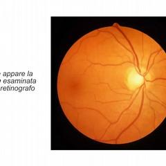 Gli occhi: una finestra sulla salute