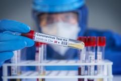 Coronavirus, 16 nuovi casi in Puglia e zero decessi