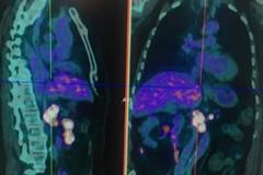 Tumori neuroendocrini: nella Bat prima Pet in Puglia con Gallio 68