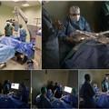 L'equipe medica del dottor Pasquale Attimonelli esegue rimozione catarratta con il laser